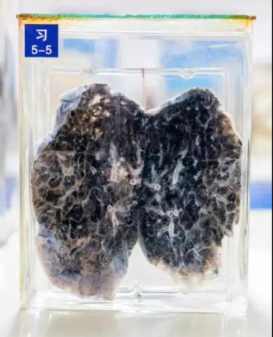 患了癌的肺、胃、肝都长什么样?